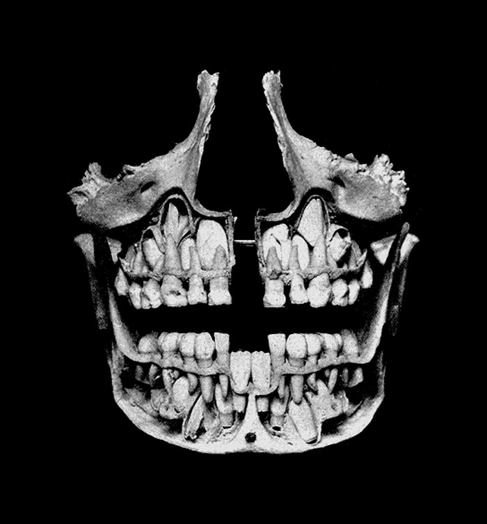 Teeth and jawbone