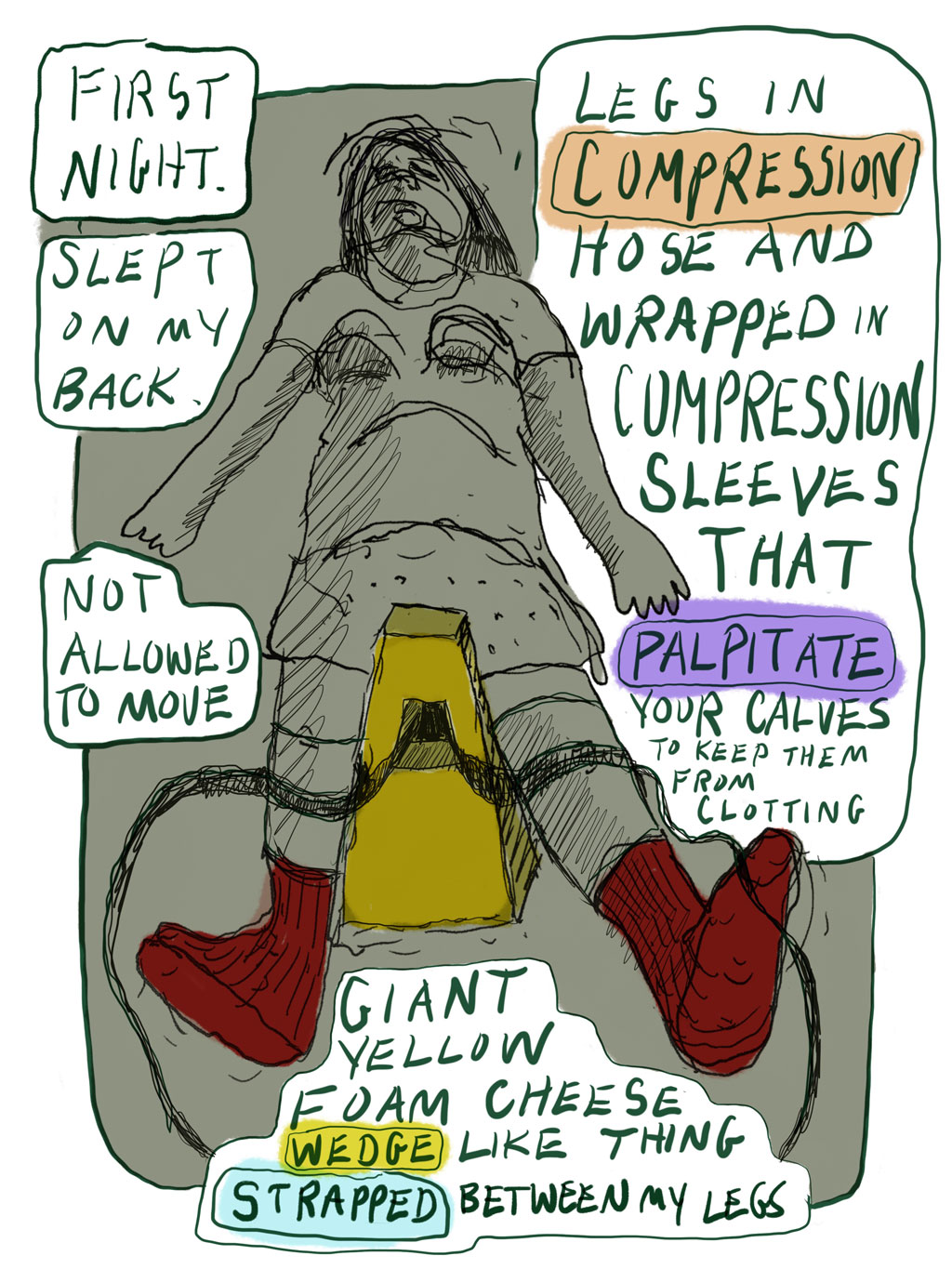 Panel 13: First night. Slept on my back, not allowed to move. Legs in compression hose and wrapped in compression sleeves that palpitate your calves to keep them from clotting. Giant yellow foam-cheese wedge-like thing strapped between my legs.