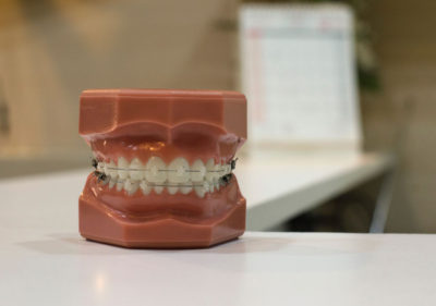 Dentures wearing braces on a formica table